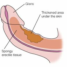 What causes a curve in the penis